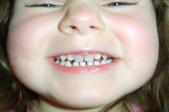 Why your child has a dark tooth - Institut Ortodoncia Barcelona