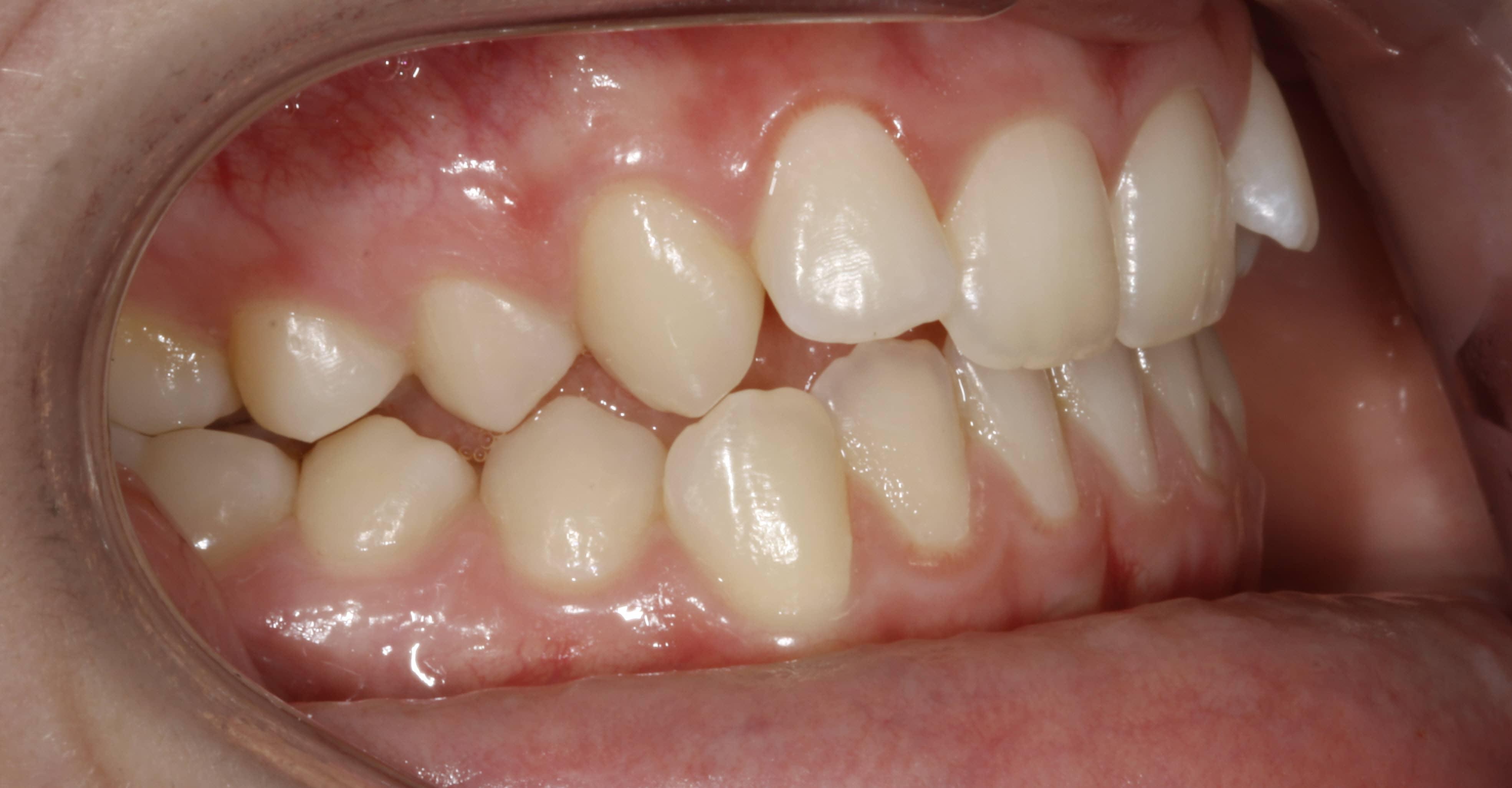 IOB-ortodoncia-barcelona-marpe
