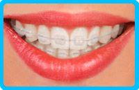 Correctores-dentales-cerámicos