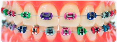 Diseñador-de-correctores-dentales
