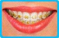 Correctores-dentales-de-oro