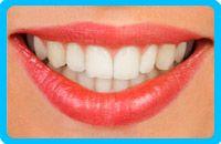 Correctores-dentales-linguales